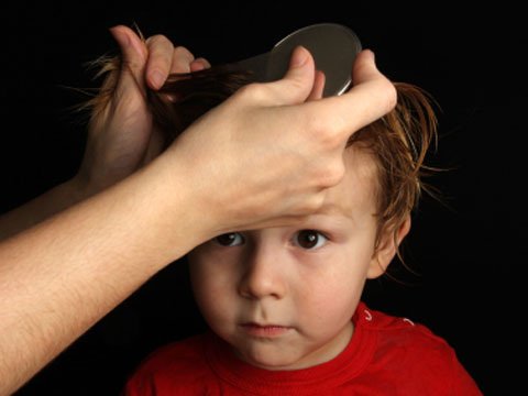 Head lice treatments