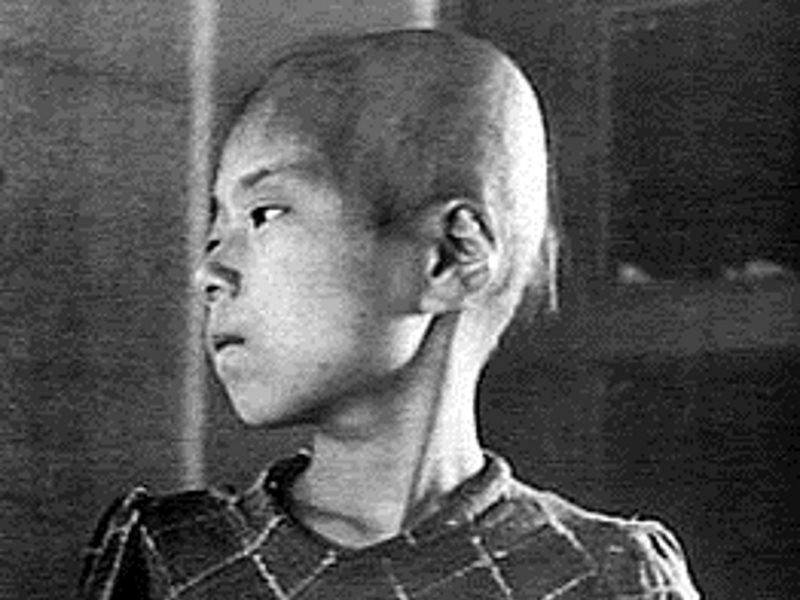 Aiko Ikemoto on 6th October 1945, as an outpatient at Hiroshima Red Cross Hospital. Shielded from the blast by brick walls, she survived the explosion a few miles from its epicentre, but died of cancer on 21st January 1965 at the age of 29 shortly after g