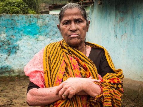 Siraj Un Nissa, Chilika Dand, suffers from vitiligo - connected to mercury poisoning. Photo: Sarah Stirk.