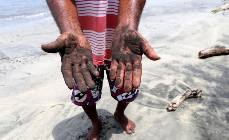 Coal dust washed up on the beach marks the hands of a local villager in Columbia.